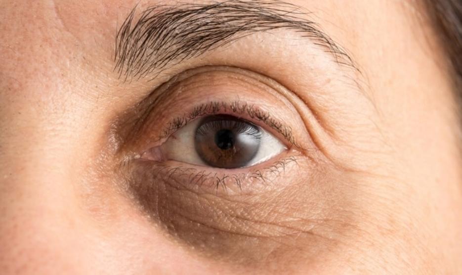 شش راه برای رهایی از تیرگی دور چشم